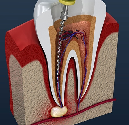 computer illustration of the pulp of a tooth being removed