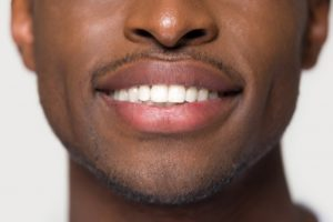 Closeup of beautiful smile thanks to cosmetic dentistry